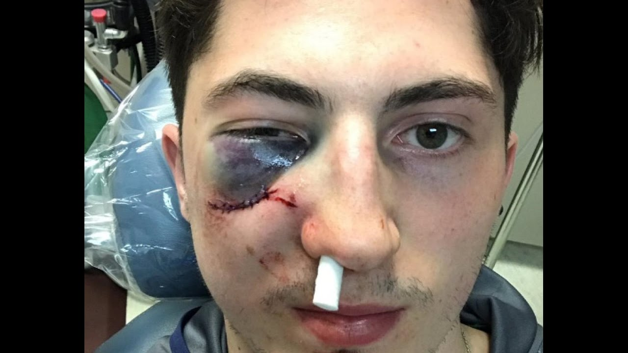 WATCH VIDEO : Blue Jackets Zach Werenski takes puck to face, - YouTube