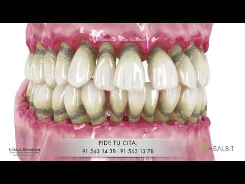 """Periodoncia - gingivitis y periodontitis o """"piorrea"""""""