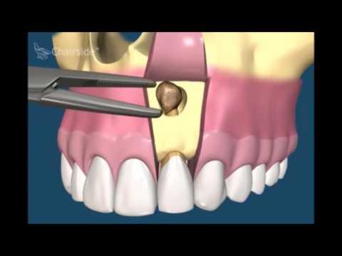 После резекции болит зуб