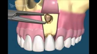 Хирургическая стоматология  Удаление кисты зуба и резекция корня зуба.(Продолжаем публиковать лучшие видео статьи по хирургической стоматологии. В нем мы расскажем как происход..., 2015-05-01T17:48:41.000Z)