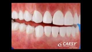 River Road Dental: Abfractions