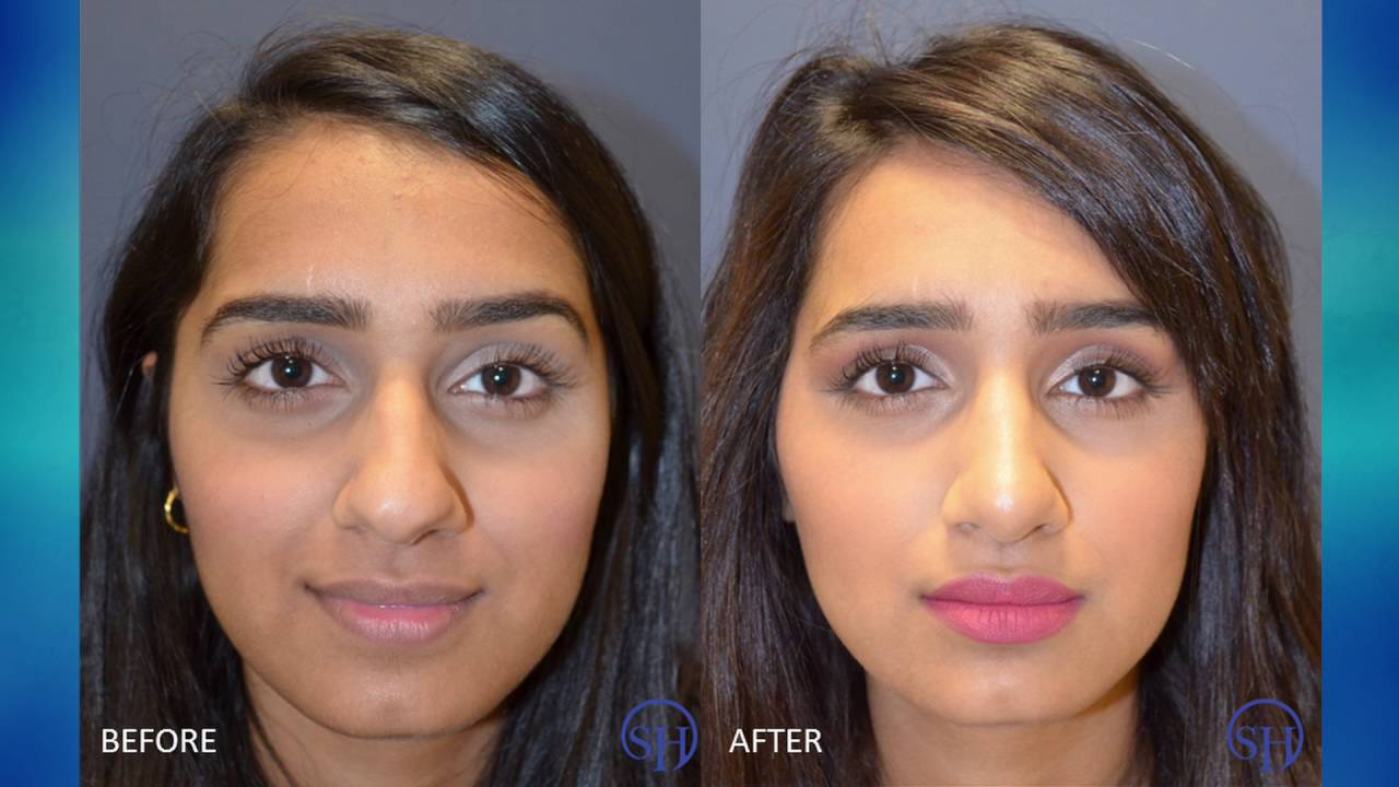 rhinoplasty nose job experience before & after - youtube