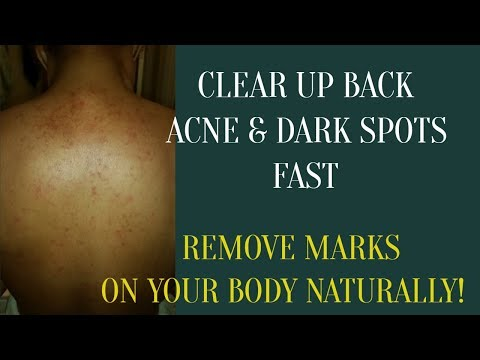 how-to-clear-back-acne-and-remove-marks,-brown-or-dark-spots-on-your-body.-easy-natural-oil-mix