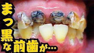 【虫歯の神経を取る】まっ黒な前歯を治療 [ dentistry]【 cleaning】[ health and wellness](【去除蛀牙神經】治療變黑的門牙)