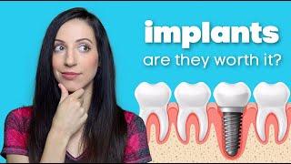 Dental Implant Procedure Options & Cost