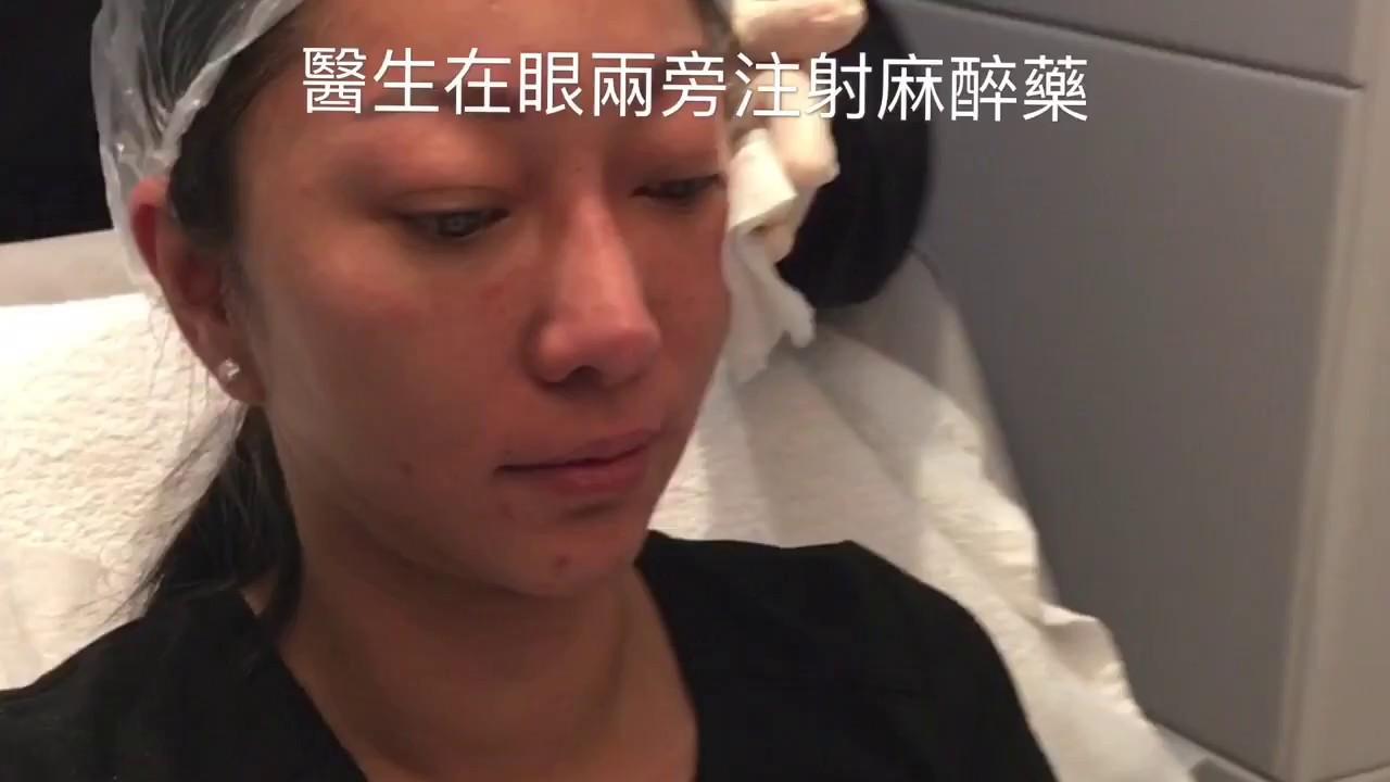 Derma veil 童顏針針筒注射 - YouTube