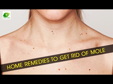 Do You Ask How To Get Rid Of Skin Moles Overnight?