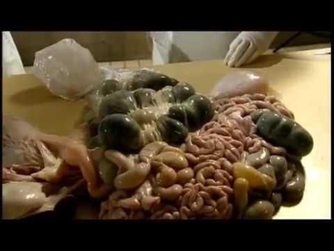 The Anatomists ★ Medicine & Surgery Documentary