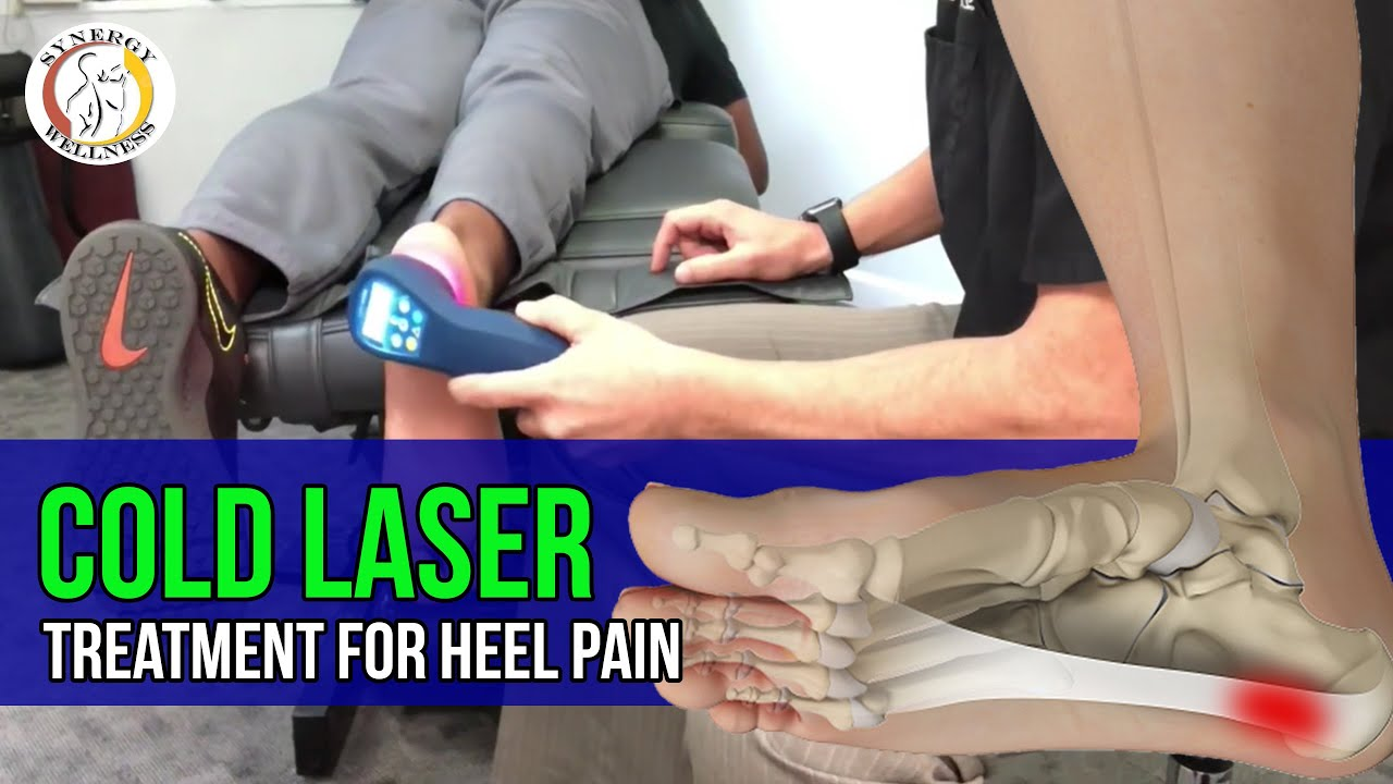 Cold Laser Treatment for Heel Pain and