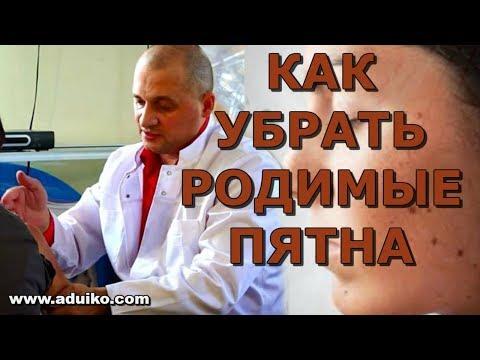 Как убрать родимые пятна . Совет врача.