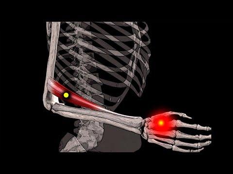 Почему болит правая рука от локтя до кисти