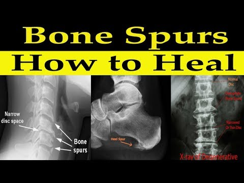 How to Heal Bone Spurs Naturally - Dr Alan Mandell, DC