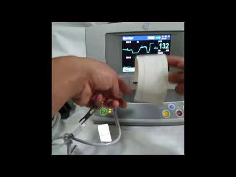 GE Responder 2000 SPO2 ECG Monitor Defib