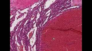 Capilar pathology outlines hemangioma
