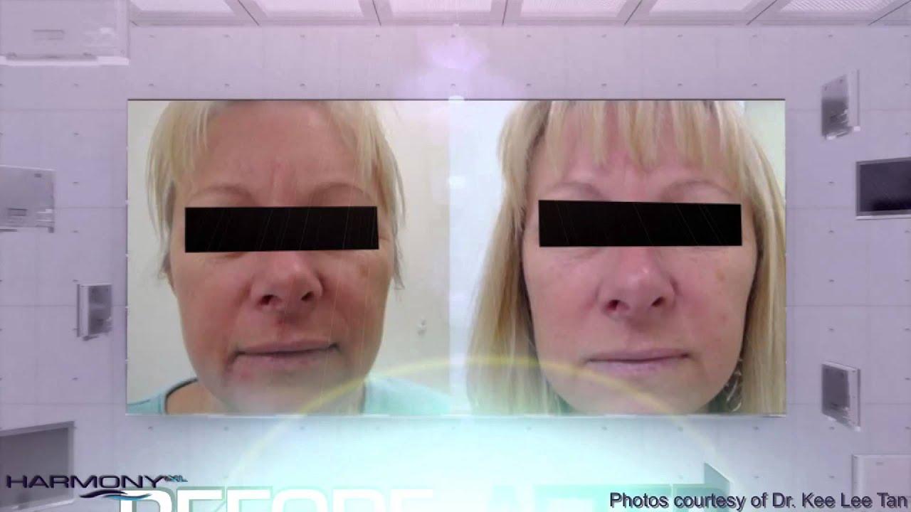 Alma Lasers ClearLift Lunch Time Face Lift