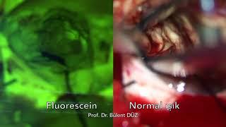 Beyin Tümörü - GBM fluorescein kullanımı Prof  Dr  Bülent DÜZ