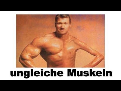 Ungleich große Muskeln - Was kann man tun? Unterschiedlich große ...