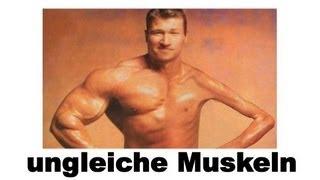Ungleich große Muskeln - Was kann man tun? Unterschiedlich große Brust - Wie trainieren?