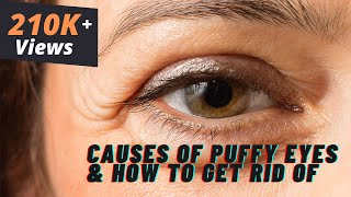 Dr. Debraj Shome Explains about What Causes Puffy Eyes & How to Get...