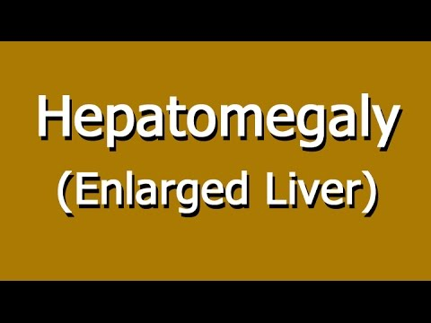 hepatomegaly - enlarged liver causes, symptoms, and diagnosis, Skeleton