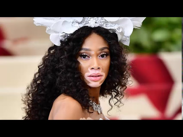 Winnie Harlow Disses 'America's Next Top Model' for Doing Nothing for Her Career