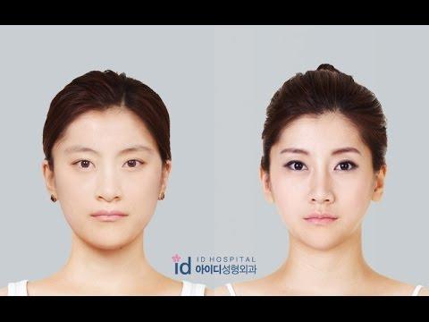 สาวหน้ายาว คางยื่น โจอึนฮี แปลงโฉมเป็นสาวสวย น่ารัก ด้วยฝีมือแพทย์ รพ.ไอดี