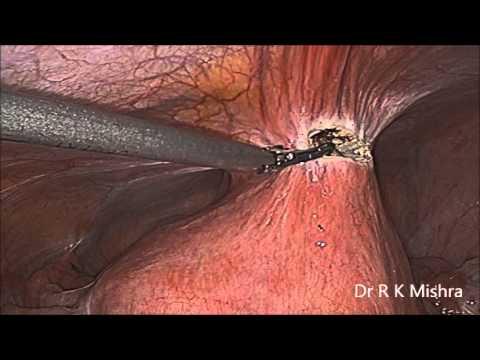 Use of Interceed for adhesion prevention in laparoscopic surgery at World Laparoscopy Hospital
