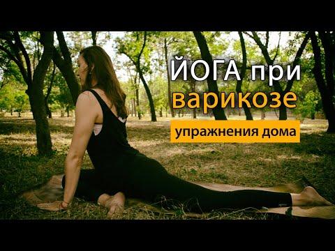 Йога: упражнения при варикозе. Советы и рекомендациии
