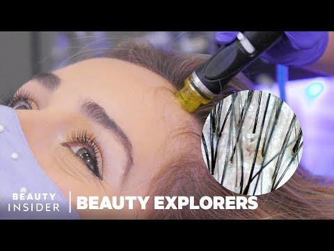 Remove Scalp Gunk With HydraFacial Keravive   Beauty Explorers