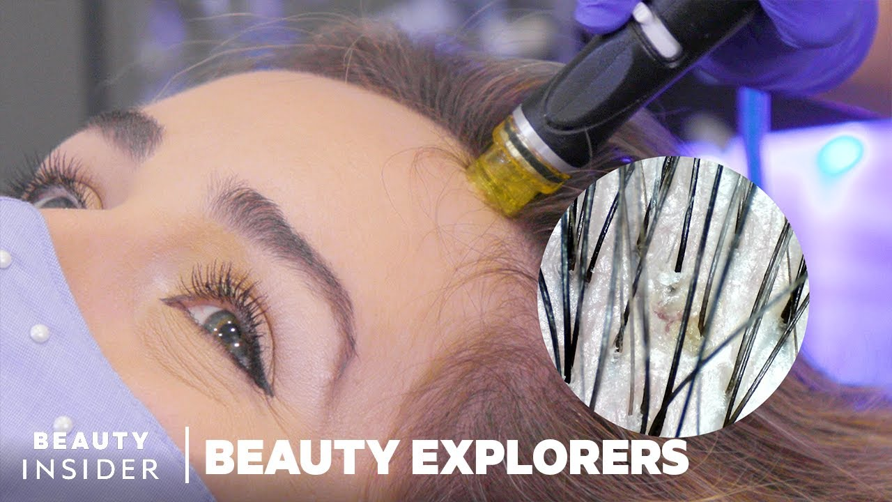 Download Remove Scalp Gunk With HydraFacial Keravive   Beauty Explorers