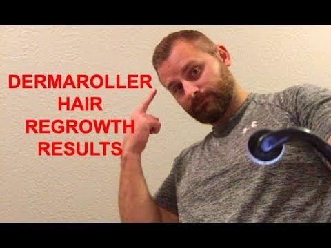 dermaroller-hair-regrowth-results