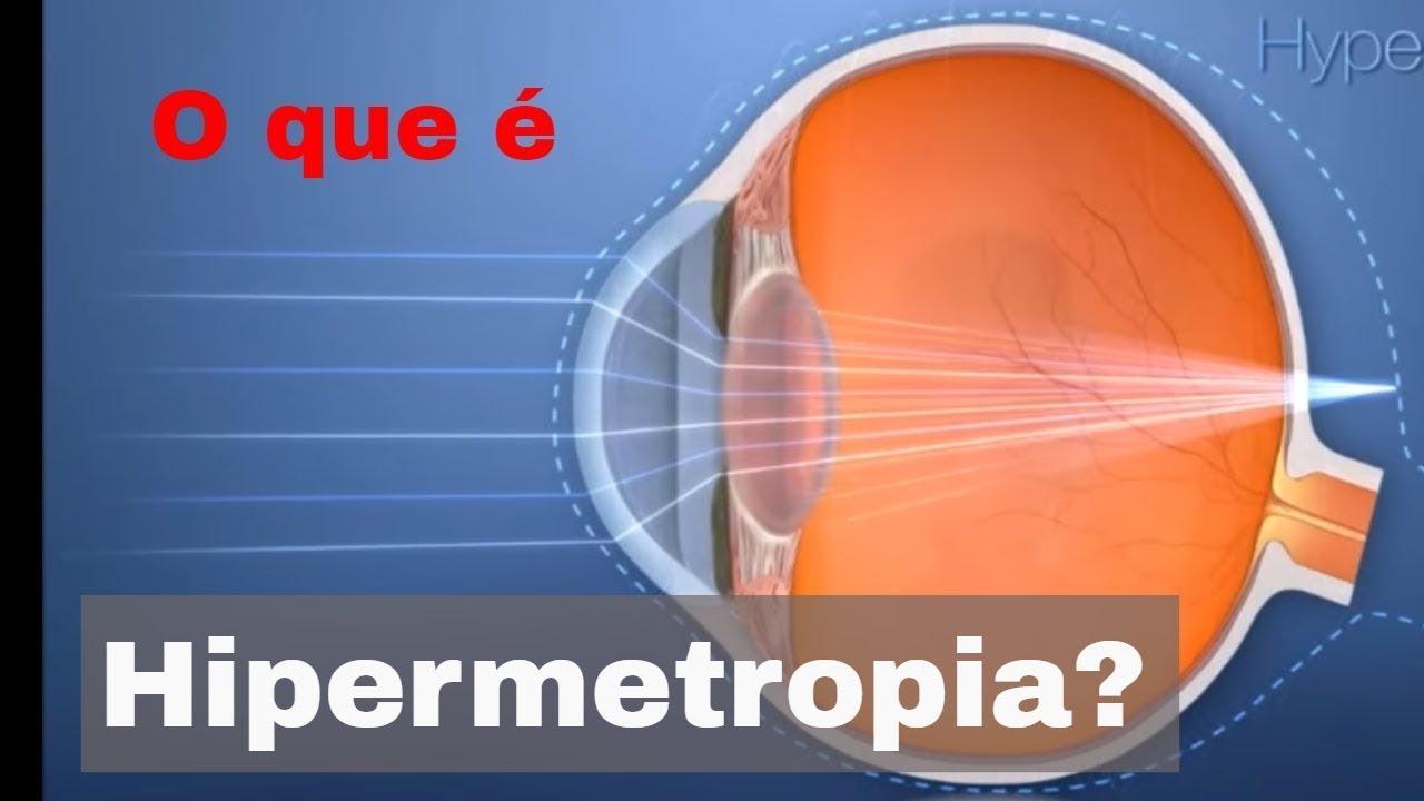 ad0c7d8dd O que é Hipermetropia? - YouTube