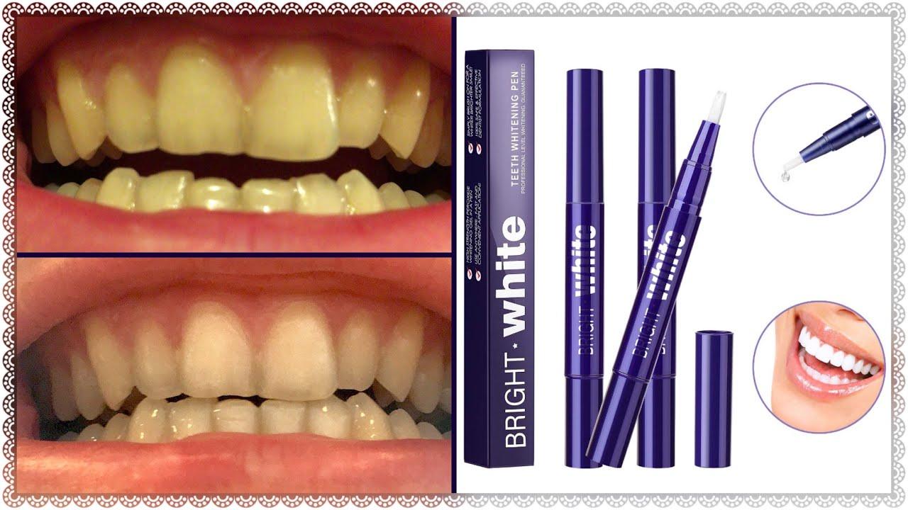Do You Struggle With Yellow Teeth Haibinsh Teeth Whitener