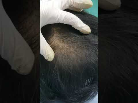fresh hair densification SMP Scalp Micropigmentation by El Truchan @ Perfect Definition