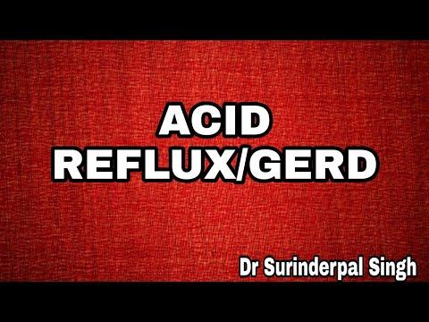 एसिड रिफ्लक्स/अम्लपित्त /Acid Reflux/GERD in Hindi by Dr S. P Singh
