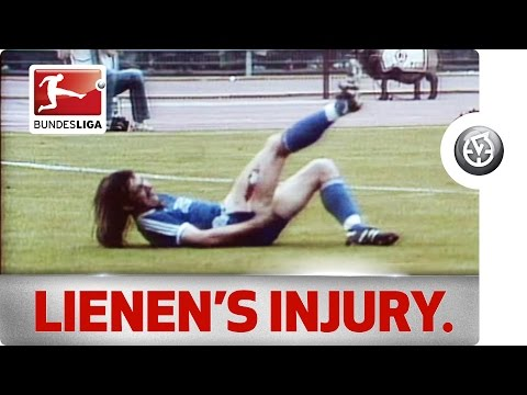 Perhaps one of the worst tackles in Bundesliga history :: Bremen's Norbert Siegmann slashes Armenia forward Ewald Lienen's thigh. [1981]