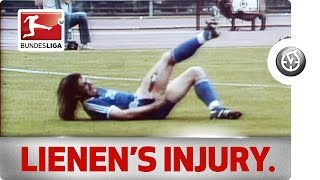 Ewald Lienen's Horrifying Injury(A horrible leg injury sustained by Arminia Bielefeld's Ewald Lienen's in a game against Werder Bremen during the 1981-82 season. Ouch! The Official ..., 2013-08-21T00:40:10.000Z)