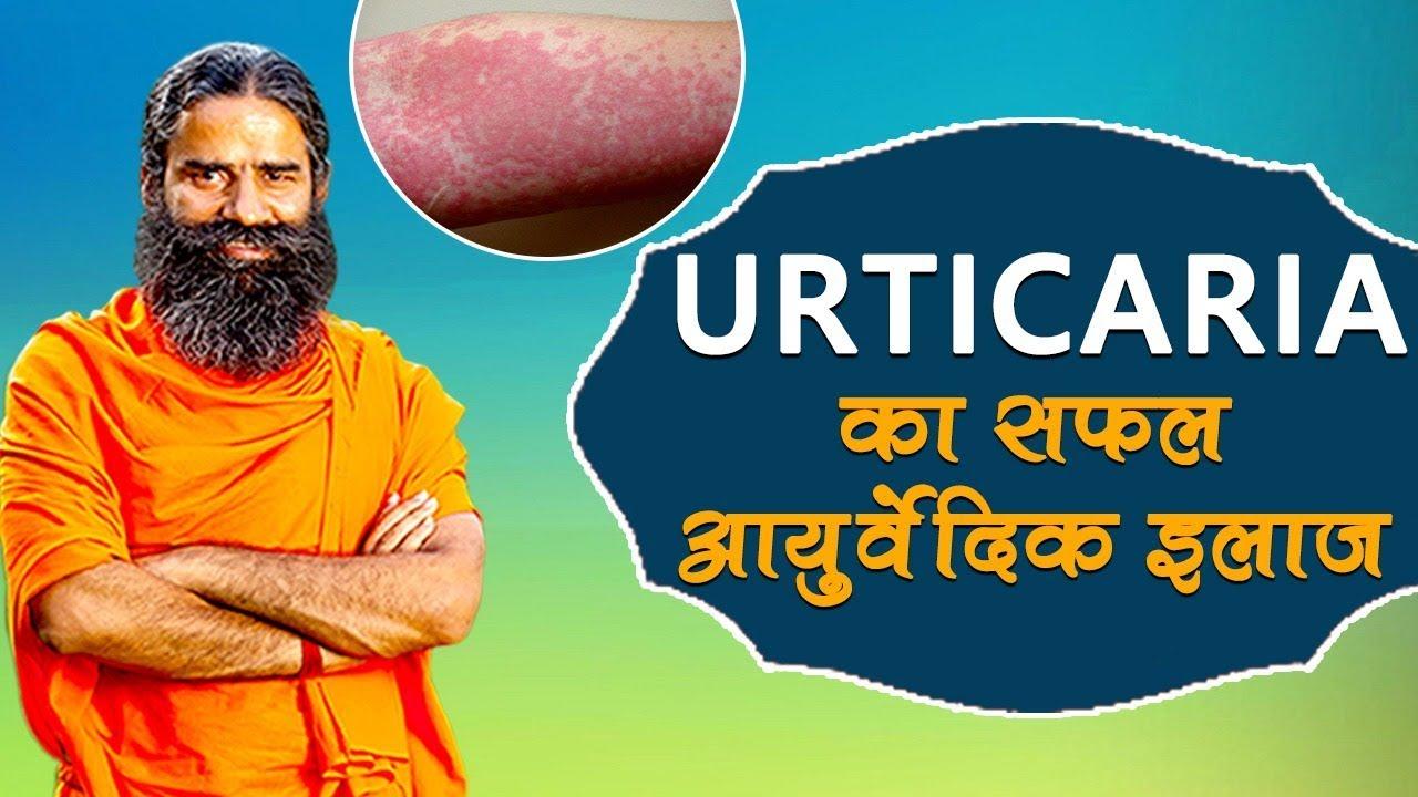 Urticaria Hives cure-Baba Ramdev in Hindi by Ayurveda Vaidya