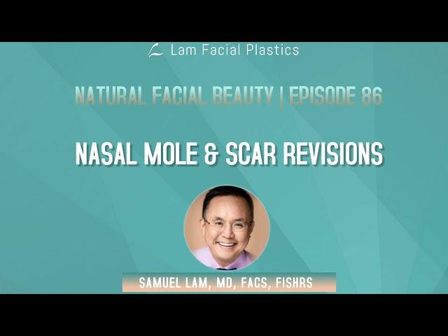 Dallas Cosmetic Surgery Podcast: Nasal Mole & Scar Revisions