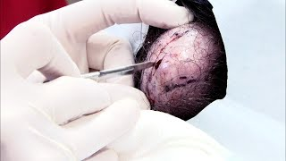 Download Video This Large Pilar Cyst Removal is One of Our Most Watch Videos MP3 3GP MP4