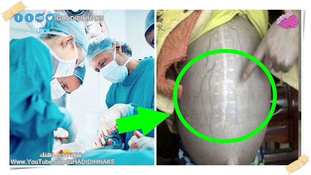 صاعقة مدوية اصابت الاطباء عندو رأو ما بداخل بطن المريضة - لن تصدق ما الذي وجده! شيء مرعب !