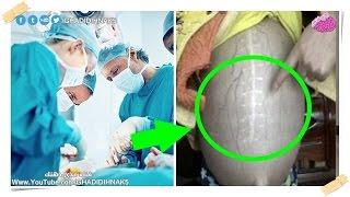 بالفيديو.. الأطباء يكتشفون ثعبانًا داخل معدة سيدة
