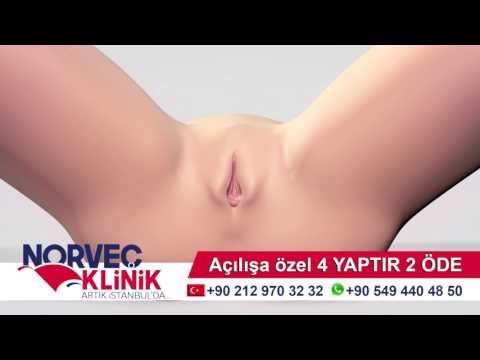 Vajina Daraltma Ameliyatı 2017 (Vajina Estetiği ) Norveç Klinik thumbnail