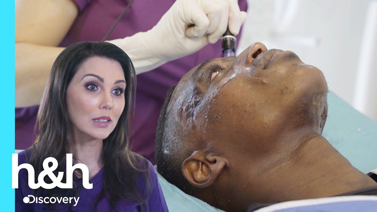 Dra. Cathy reconstruye rostro afectado por severa quemadura | Cirugías Milagrosas | Discovery H&H