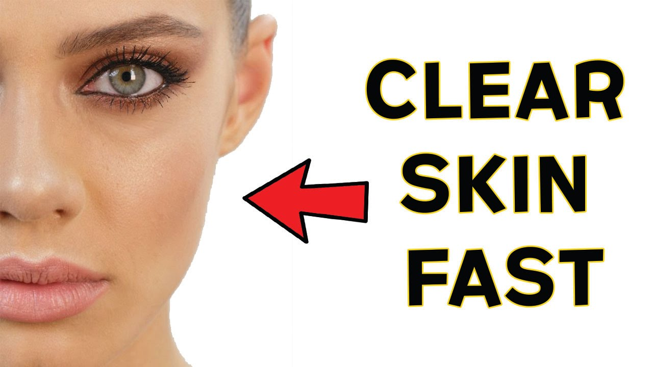 AMIE: How to get clearer skin overnight