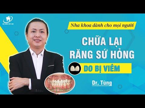 vệ sinh răng miệng tại nha khoa tại Kemtrinam.vn