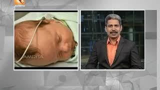 കുട്ടികളിലെ കേൾവിക്കുറവ്  | Health News:Malayalam | 01'st Jan 2019