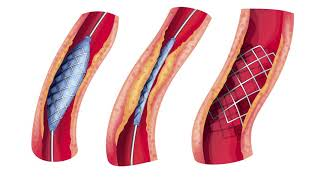 Periférica circulación presión arterial