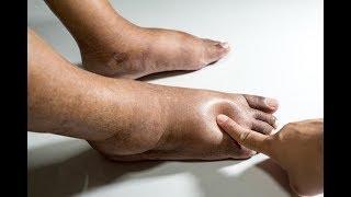 Nas pernas o parto inchaço grave após
