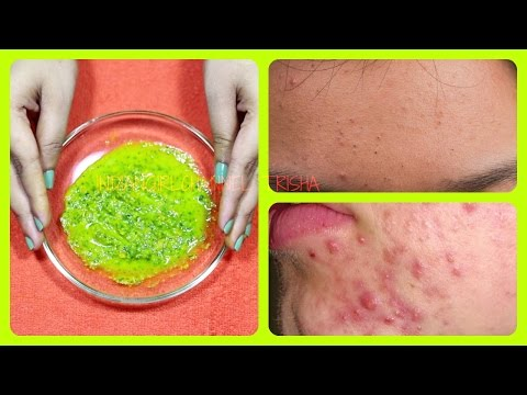Get Clean Clear Flawless Skin Remove Rashes From Face Body Naturally
